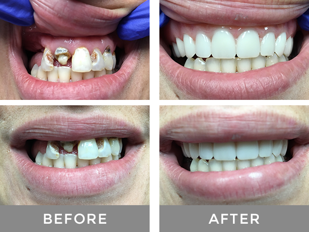 Dentures-Before-and-After
