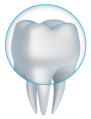 Zirconia crowns with a Prairieville and Baton Rouge dentist