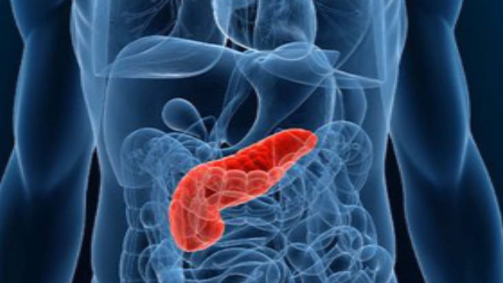 periodontal pancreatic cancer link