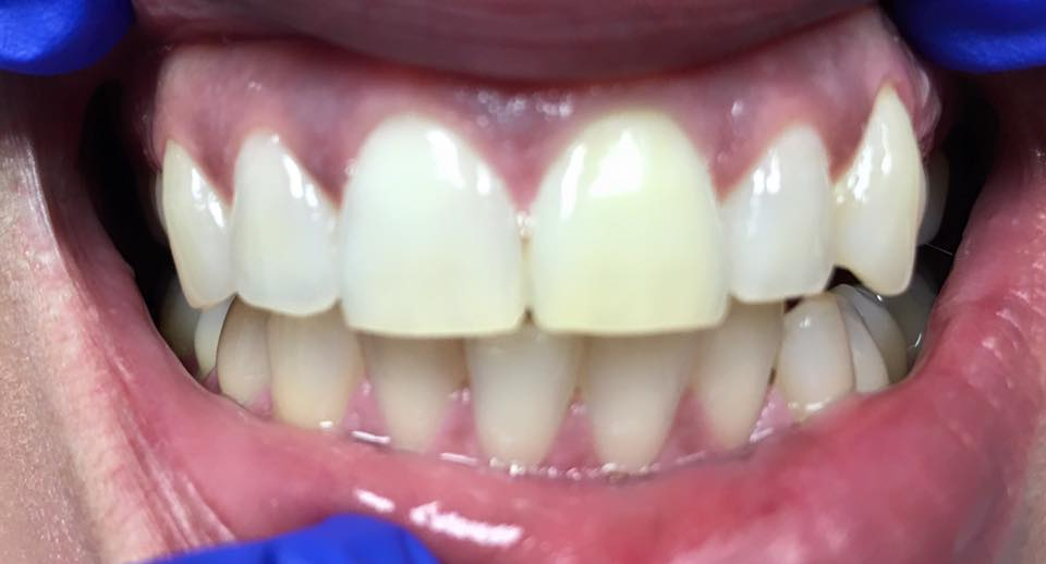 Tooth with root canal and internal bleach for 5 days with a conservative filling. Tooth is now ready for external bleaching to even the teeth out.
