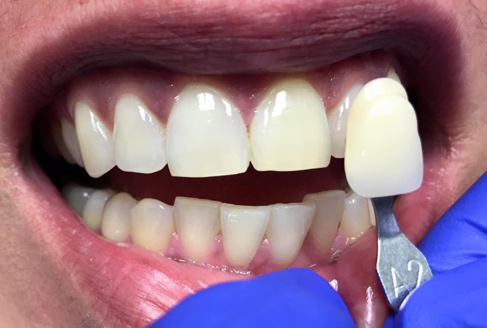 Post op shade match before external whitening. Tooth has only had internal bleach done.